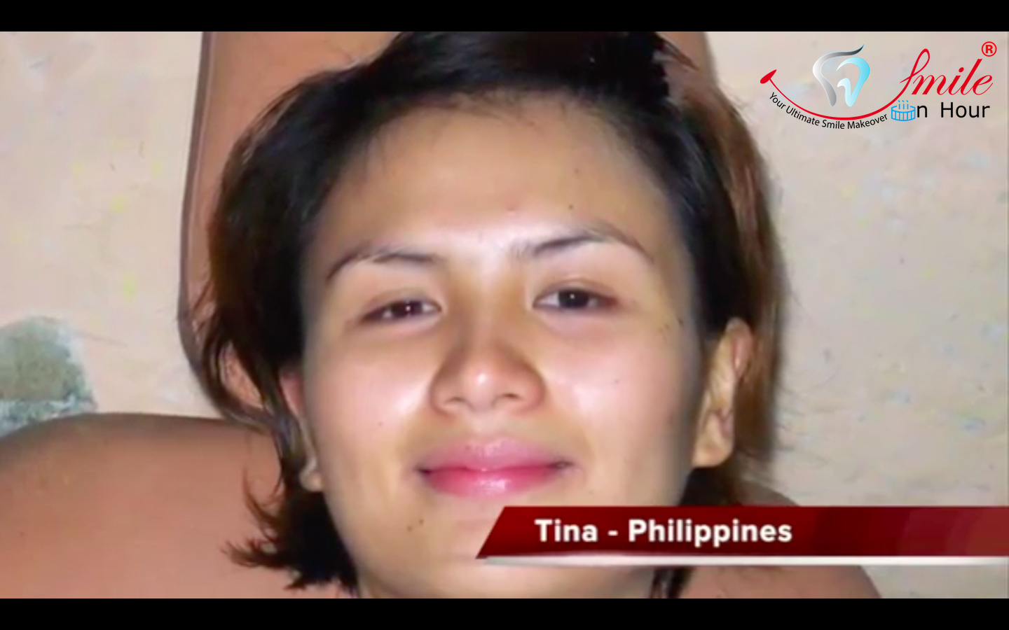 Philippines, Manila Patient testimonial for Smile in Hour Gujarat India