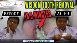 Wisdom Tooth Removal in 5 min