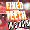 Fixed Teeth in 3Days Dental Implants smile in hour India London, Wembley, Birmingham, Manchester, Leicester, Cardiff, UK