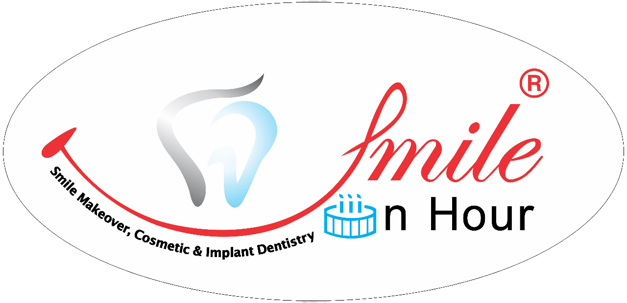 best cosmetic implants dentist India Smile in Hour® London, wembley, Birmingham, Manchester, Leicester, Cardiff, UK Logo