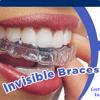 invisalign braces smile in hour India London, Wembley, Birmingham, Manchester, Leicester, Cardiff, UK